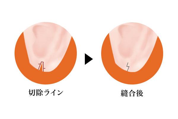 Z型形成術