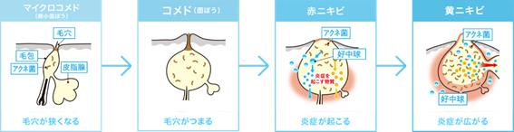 にきびの種類