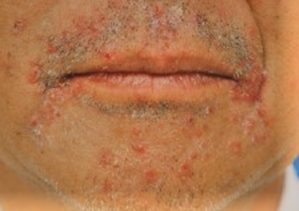 尋常性毛瘡(かみそりまけ) 白癬性・カンジダ性毛瘡