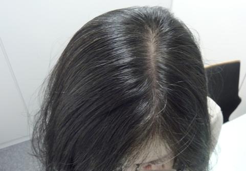 女性薄毛治療症例