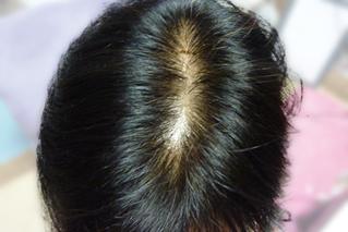 発毛・育毛治療の流れ