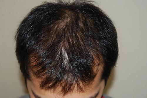 男性薄毛(AGA)治療症例