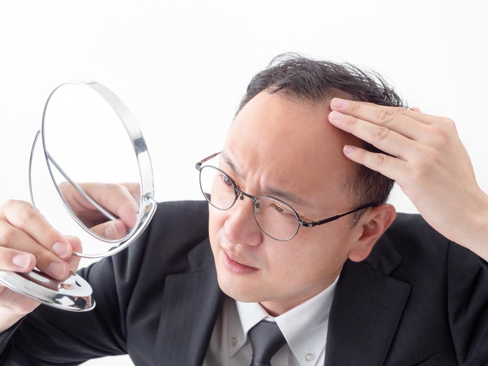 男性の薄毛(AGA)に対する発毛・育毛治療